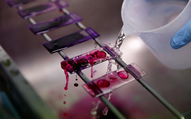 teste de amostras de sangue realizado em laboratório especializado em tuberculose. mão enluvada despeja liquido transparente por cima de lâminas contendo amostras de sangue